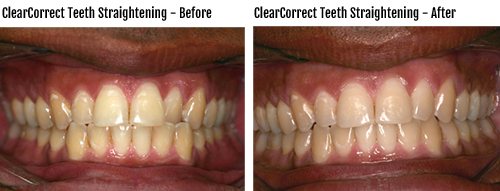 Nora Dental ClearCorrect Before and After