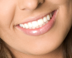 Cosmetic Dental Services Indianapolis